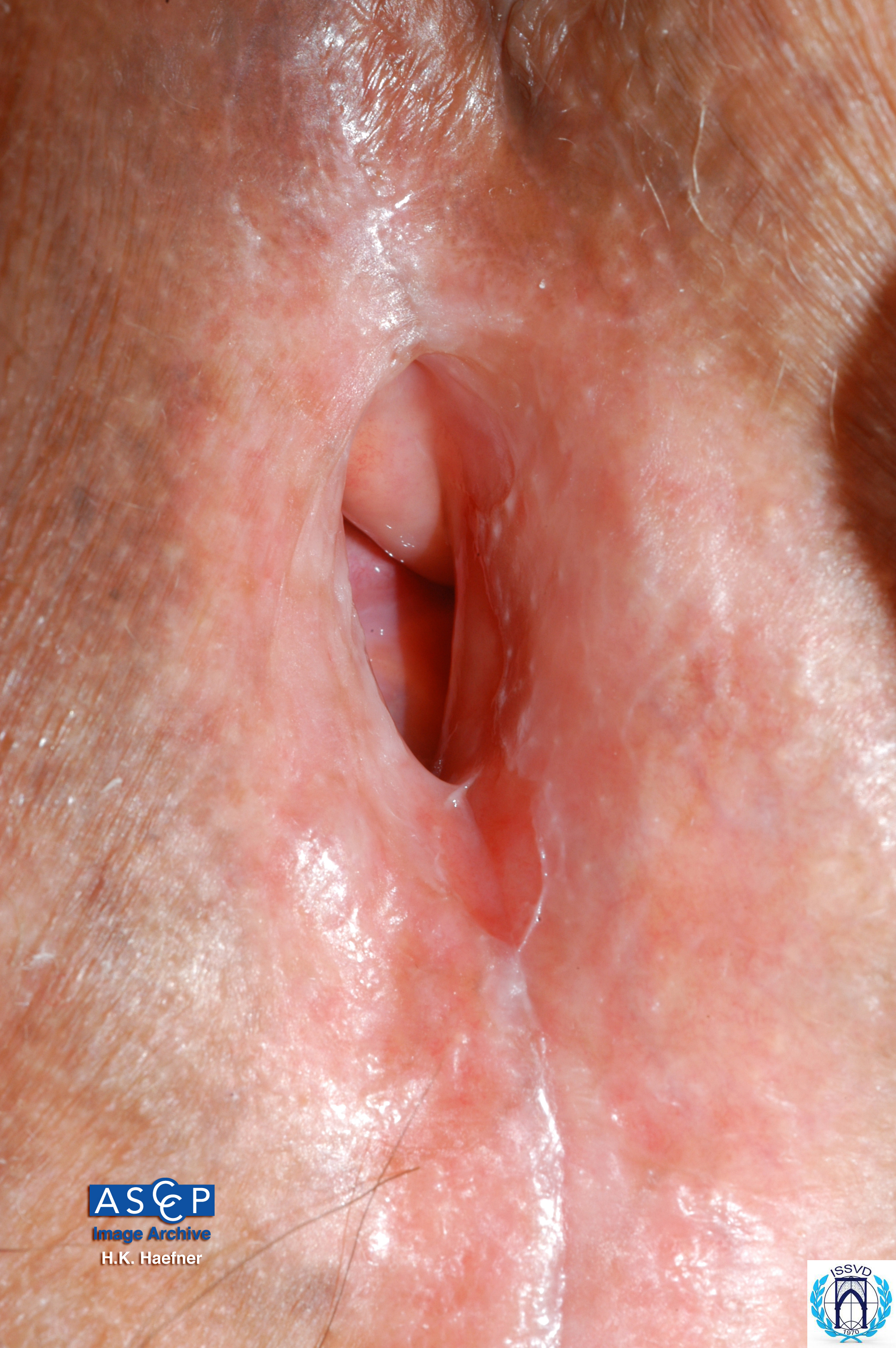 Lichen Sclerosus Et